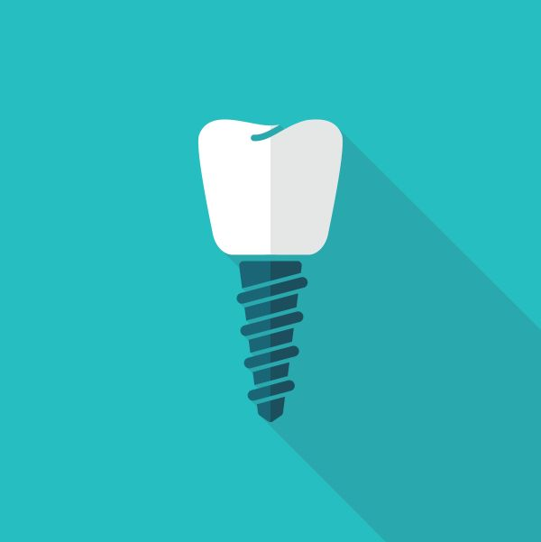 How Dental Implant Surgery Replaces Tooth Roots