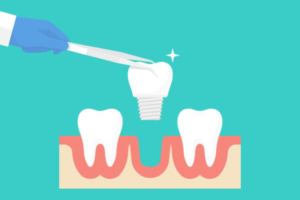 Do Dental Implants Look And Feel Like Natural Teeth?