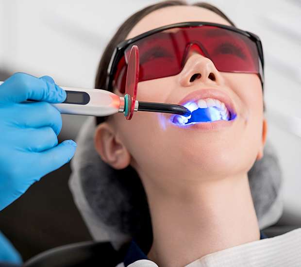 Tucson Professional Teeth Whitening